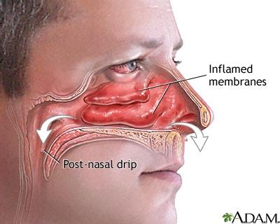 nasal congestion nasal congestion causes symptoms treatment nasal congestion