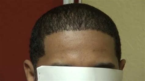 hairline restoration for black men black man fue hair loss transplant surgery result hairline