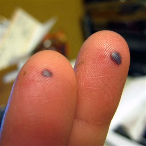 blood blister on blood blisters causes symptoms treatment pictures prevention diseases pictures
