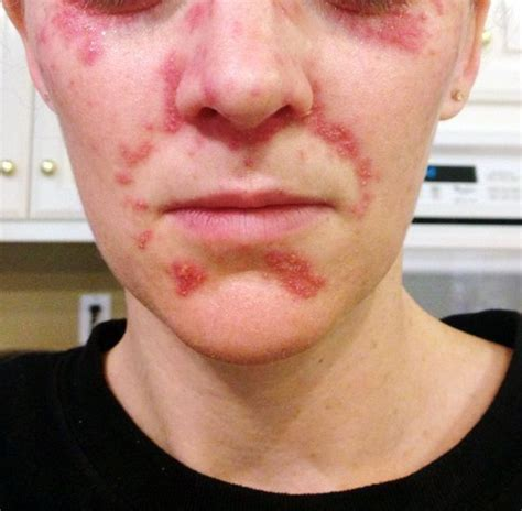 Rosacea Detox by Perioral Dermatitis Withdrawals From Corticosteroid