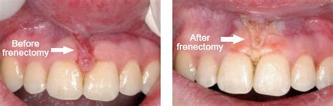diode laser frenectomy related keywords suggestions for laser frenectomy