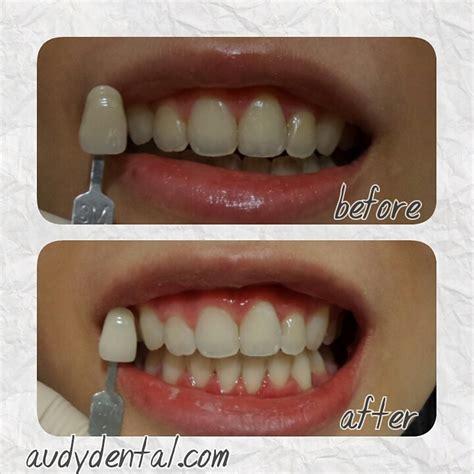 Pemutihan Gigi Bleaching hasil pemutihan bleaching gigi di audy dental audy dental