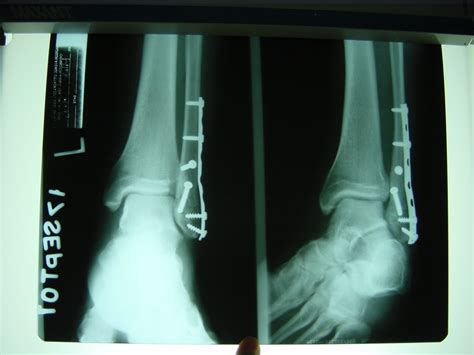 Garden State Foot And Ankle Fixation Of The Ankle Primum Non Nocere