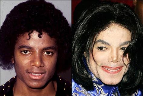 marys extreme makeover face nose and body michael jackson plastic surgery before after celebrity