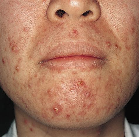 pustules pestilence and tudor treatments and ailments of henry viii books pictures info pustules