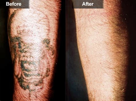 neo mag light tattoo removal reviews removal light shark tank iron