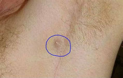 ingrown hair under the arm ingrown armpit hair lymph node pictures lump how to