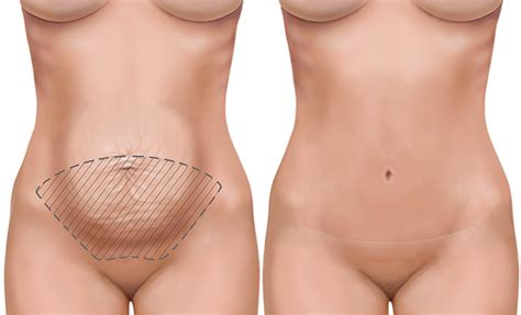 c section and tummy tuck together abdominoplasty