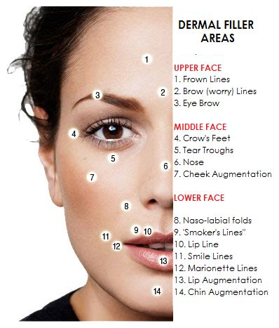 Where Your Wrinkle Filler Gets Injected Podcast by A About Wrinkle Fillers And Relaxing