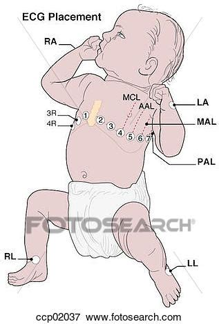 stock illustration of ecg, electrode placement ccp02037