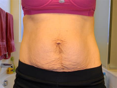 post c section abs post c section belly before and after foto bugil bokep 2017