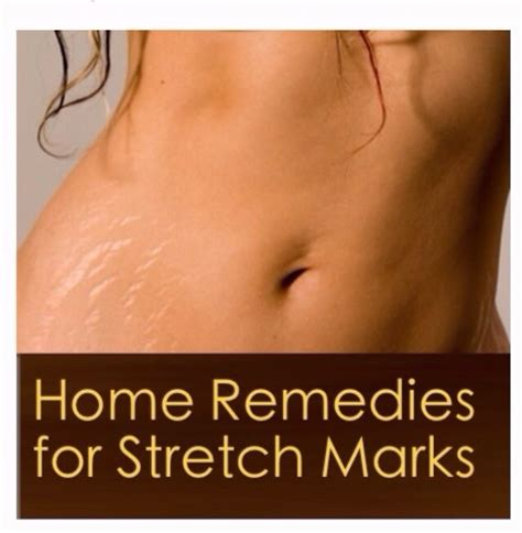 home remedies for stretch marks musely