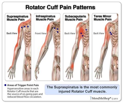 shoulder pain after c section 25 best ideas about rotator cuff tear on pinterest