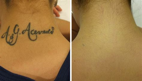 free tattoo removal for military before after removal gallery ink b denver
