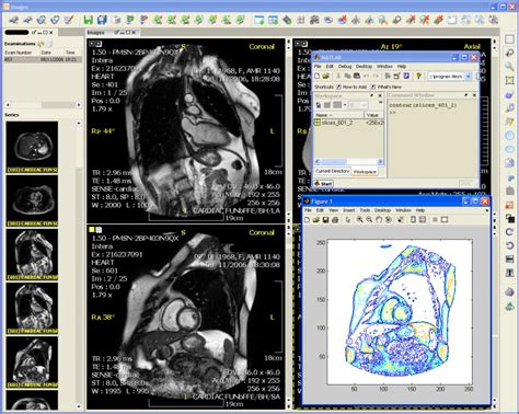 image processing in matlab perform image processing analysis and algorithm development books features evorad