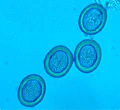 whole grains contain quizlet parasite lab images tapeworms flashcards quizlet