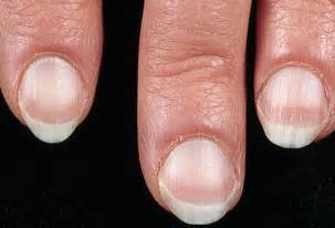Nail Bed Pictures Of What Your Nails Say About Your Health Ridges