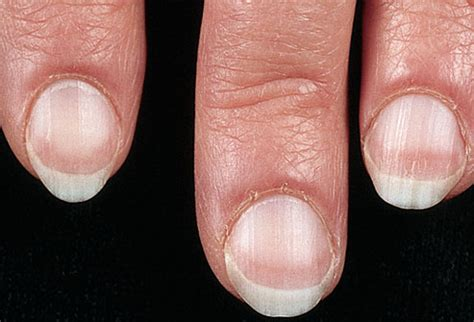 white nail beds pictures of what your nails say about your health ridges spots lines bumps and more