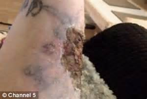 jessica hardy s tattoo removal kit contained a banned