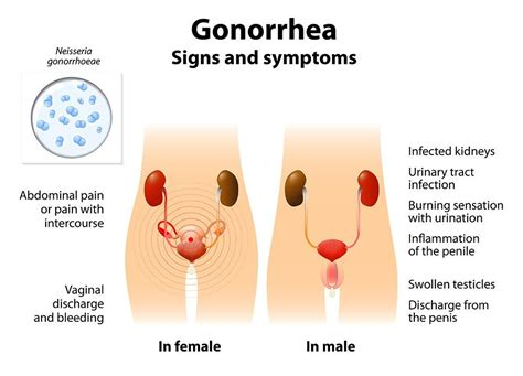 test gonorrea gonorrhea clap symptoms signs causes treatment