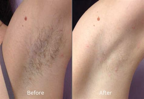 diode laser hair removal before and after laser hair removal california monarch laser services