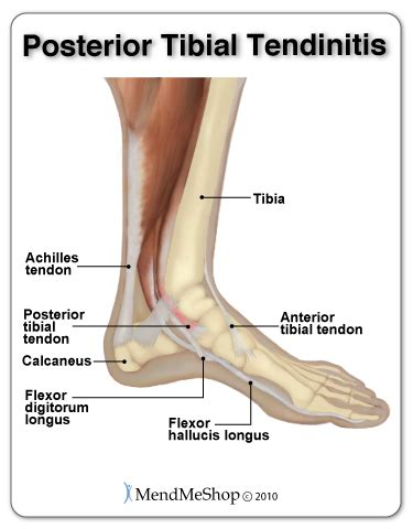Interior Ankle Sprain by Mendmeshop Tendonitis Of The Ankle