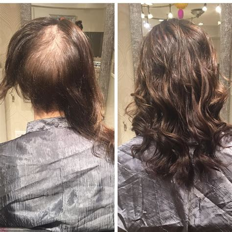 hair salons that specialize in alopecia in rockford il meet allana fabrikant kanevsky of extology salon in north