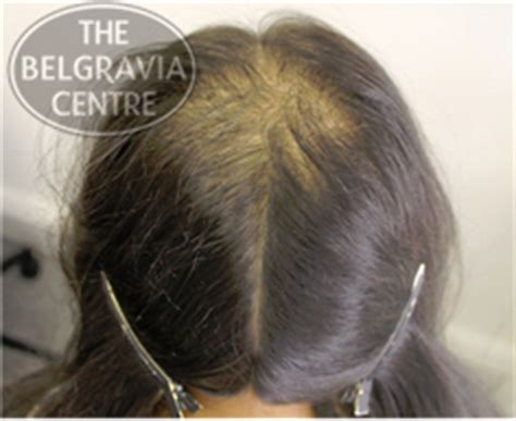 women balding on crown hair loss in women a guide