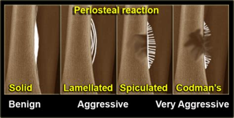 on radiology: what is periosteal reaction? it`s types