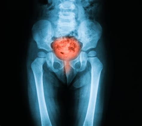 can a c section cause bladder problems cystitis causes symptoms and treatments medical news