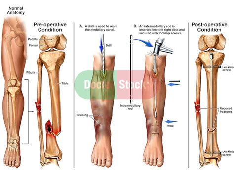lower leg fractures broken tibia and fibula with