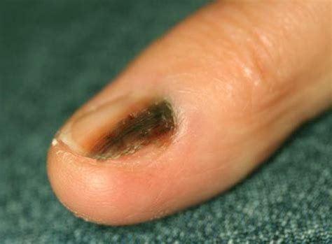 nail bed melanoma related keywords suggestions for nail bed melanoma symptoms