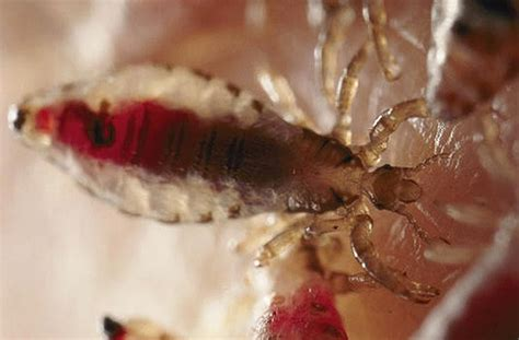 quanto vivono i pidocchi fuori dalla testa pidocchi negli umani dettagli dei pidocchi umani