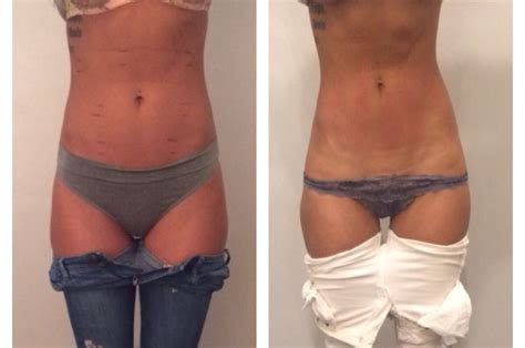 lipo after c section strawberry laser lipo before and after