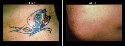 laser tattoo removal kent laser removal results northwest aesthetics