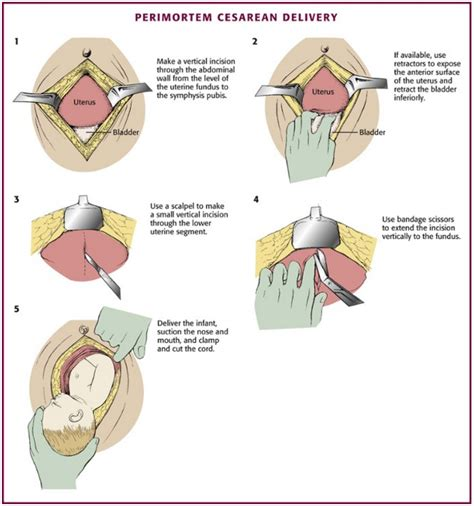 Steps Of C Section by Thinking About Perimortem Caesarean Section Adelaide Emergency Physicians