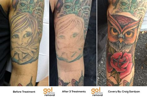 easy tattoo colors to remove 1000 images about tattoo removal to tattoo cover up on