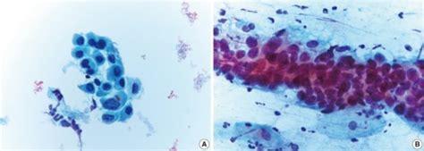 metaplasia pap test atypical squamous metaplasia in an liquid based prepara