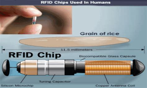obamacare rfid chip section obamacare implant obamacare microchip rfid