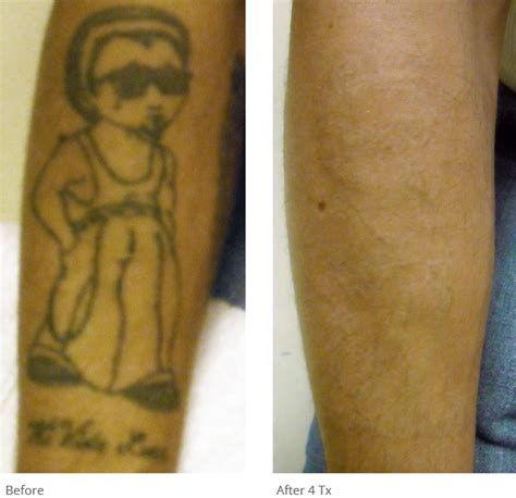 tattoo removal results astanza removal before after photos