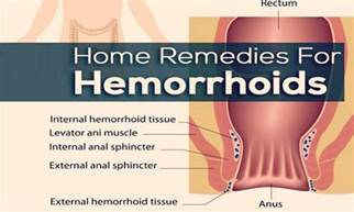 hemorrhoids home remedy 39 home remedies for hemorrhoids relief
