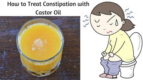 how to relieve constipation how to treat constipation with castor