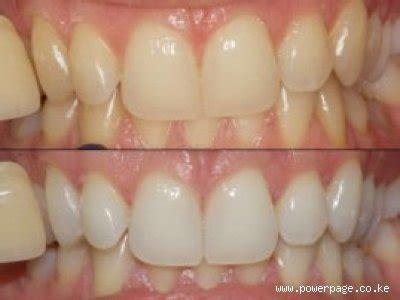 enlighten teeth whitening implant laser dental centre