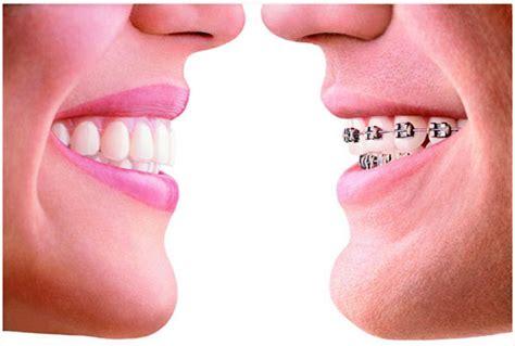 apparecchio ortodontico mobile sosdentista blogapparecchio ortodontico quando e come