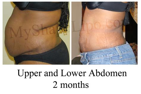 lipo after c section myshape lipo aims to replace the tummy tuck with laser