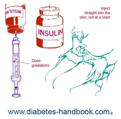 insulin diagram rotating injection diagram rotating free engine