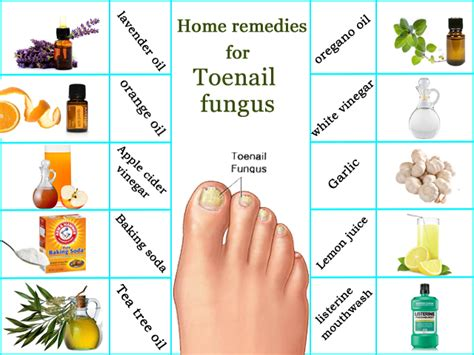 home remedies for toenail fungus onychomycosis treatment