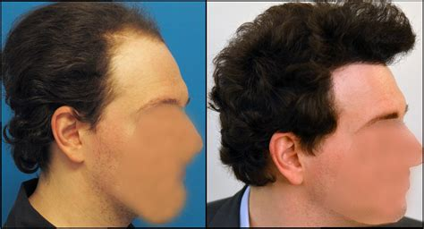 correct haircut transplant dr hasson 4660 grafts one procedure 13 months forum by