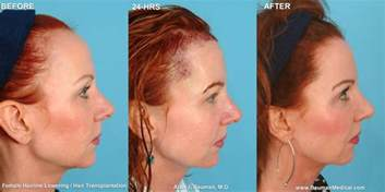 high hairline for pics plastic surgery related hair loss bauman medical group