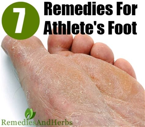 kill athlete s foot in shoes 7 ways to treat and avoid athlete s foot diy home